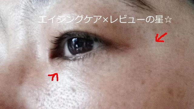 [ビーグレン]トータルリペアアイセラム【使用9日目】