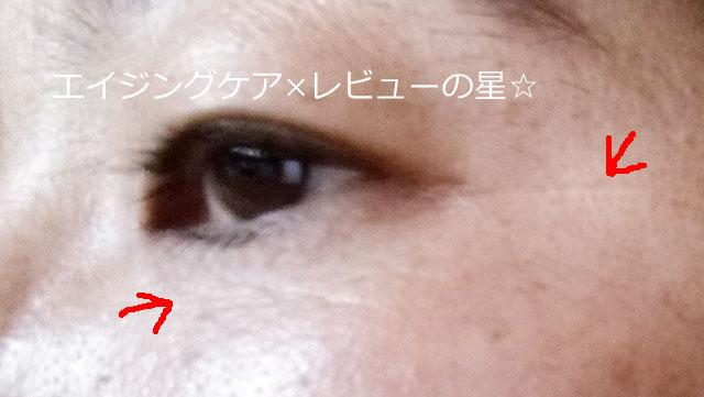 ▲[ビーグレン]トータルリペアアイセラム【使用前】