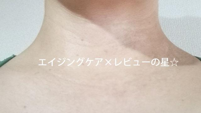 ▲[ビーグレン]エイジングケア トライアルセット【使用前の首のしわ】
