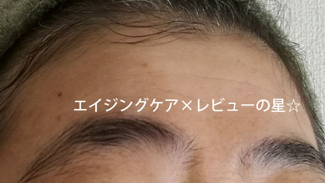 ▲[ビーグレン]エイジングケア トライアルセット【使用10日目のおでこのしわ】