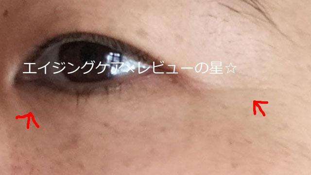 ▲[エトヴォス]バイタライジングライン【使用14日目】
