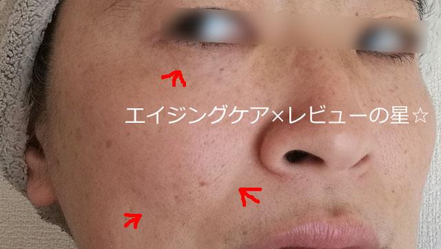 ▲アスタリフト【使用8日目】