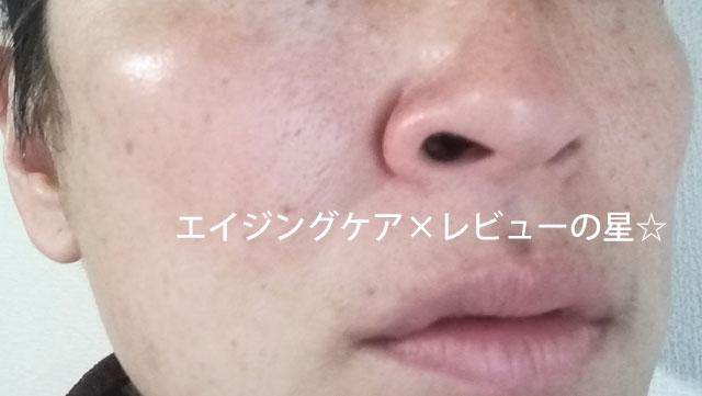 ▲[アンプルール]ラグジュアリー デ エイジ【使用19日目】