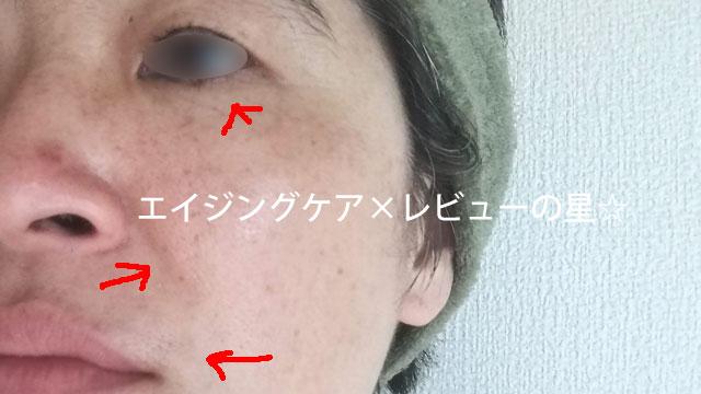 ▲レチノタイム【使用26日目】