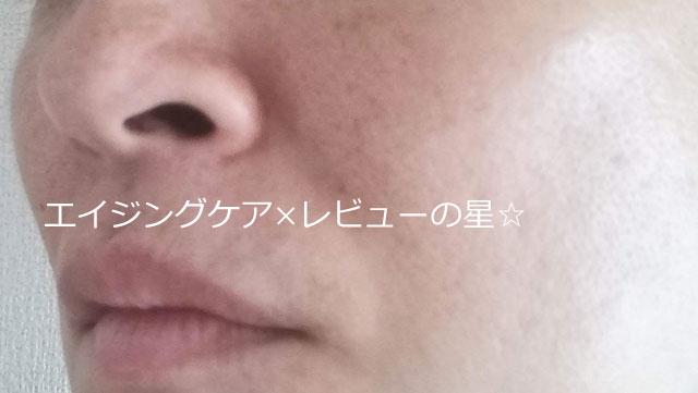 ▲【毛穴クレンジング前】ナールスエークレンズ