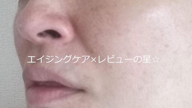 ▲【毛穴クレンジング後】ナールスエークレンズ