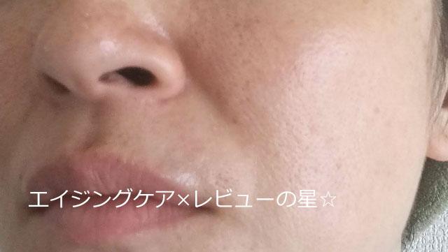 ▲[マナラ]ホットクレンジングゲルで、毛穴クレンジング【前】