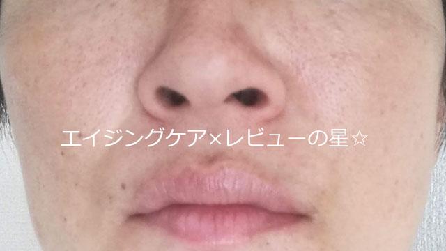 ▲【毛穴クレンジング前】[パラドゥ]スキンクレンジング