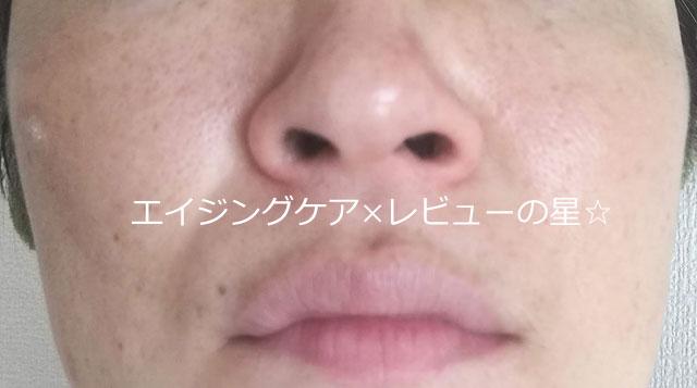▲【1回毛穴クレンジング後】[パラドゥ]スキンクレンジング