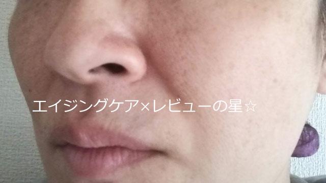 [レチノタイム] クレンジング&マッサージクリームEXで【毛穴クレンジング前】