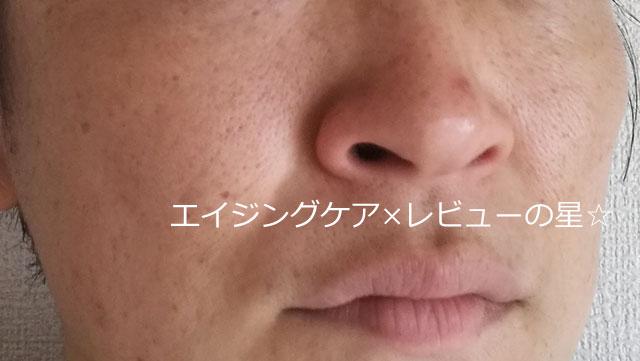 ▲ビーグレン【シミ消し前】