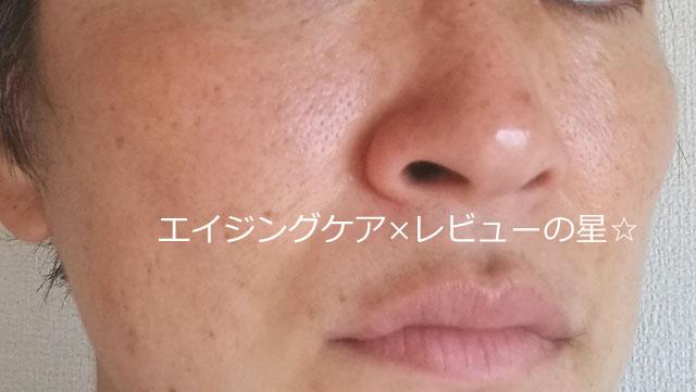 ▲ビーグレン【シミ消し16日目】
