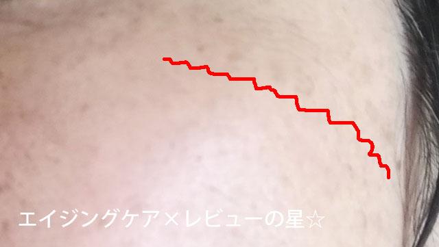 ▲アスタリフトホワイト【使用前】
