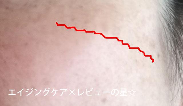 ▲アスタリフトホワイト【使用12日目】