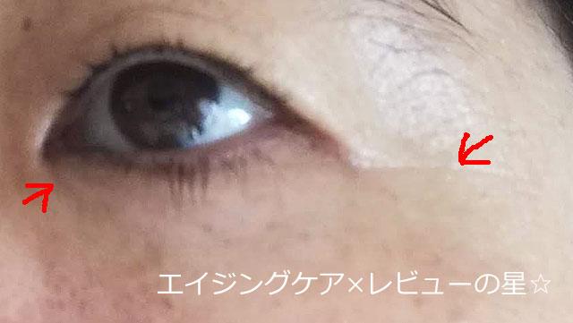 ▲[キュレル]エイジングケアシリーズ【使用前】