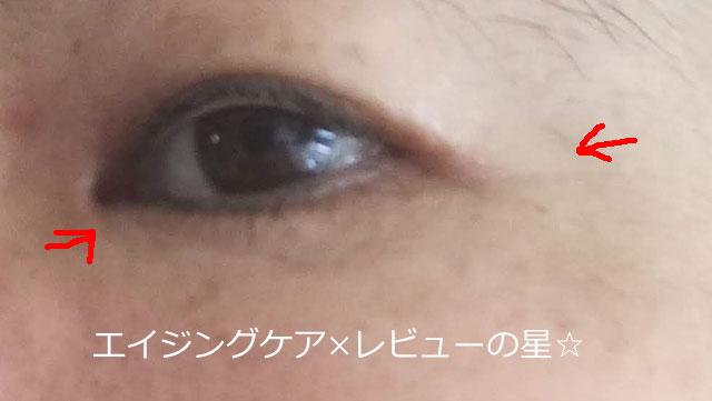 ▲[キュレル]エイジングケアシリーズ【使用20日後】
