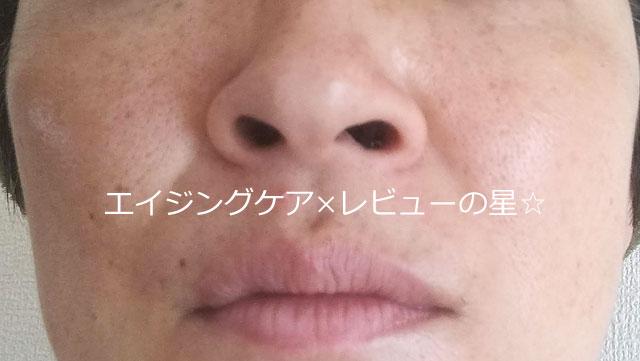 ▲毛穴クレンジング【前】ルシェリ オイルイン クレンジングジェル