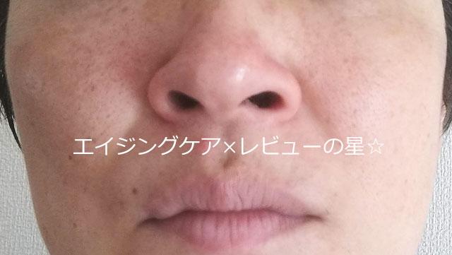 ▲毛穴クレンジング【後】ルシェリ オイルイン クレンジングジェル