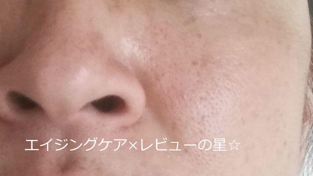 ▲毛穴クレンジング前[リーフアンドボタニクス]クレンジングジェルMEBUKI