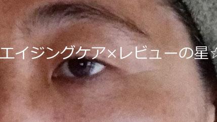 ▲デルメッド【使用前】