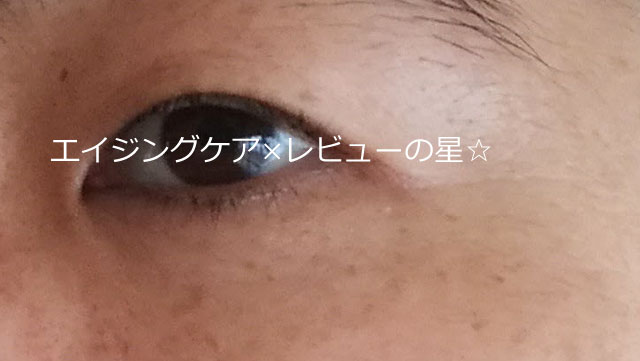 ▲メディプラスゲル【使用30日目】
