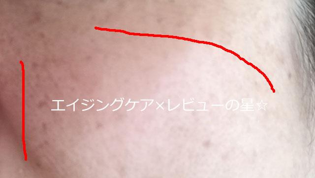 ▲HAKU メラノフォーカスV【使用前】