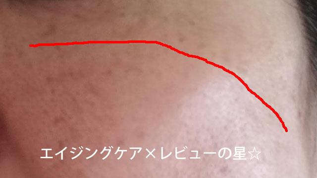 ▲アンプルールで【シミ対策16日目】