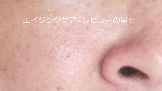 【たるみ毛穴対策前】オラクル化粧品
