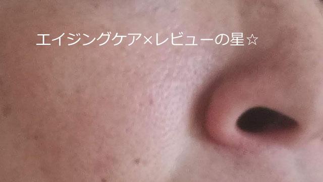【たるみ毛穴対策20日目】オラクル化粧品