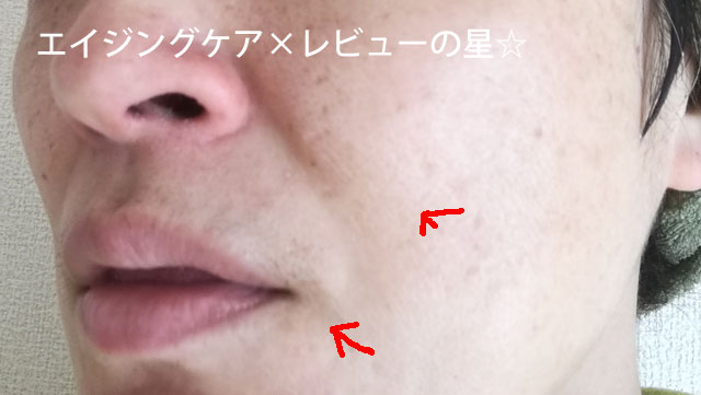 ▲[トワエッセ]プレミアムエッセンス(美容液)【使用21日目】