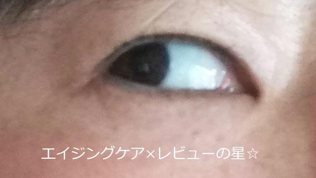 ブランホワイト【使用10日目】