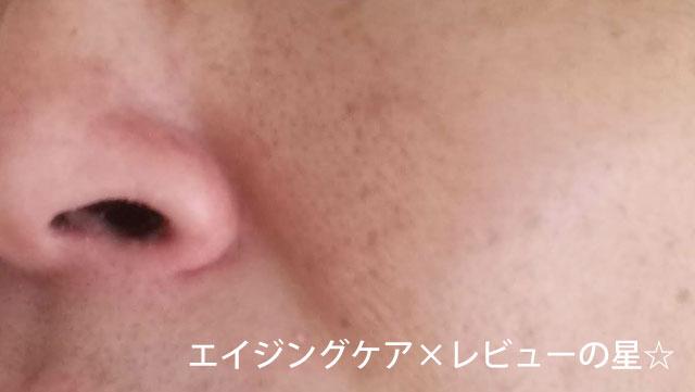 [ドクターシーラボ]金のゲル【使用前】