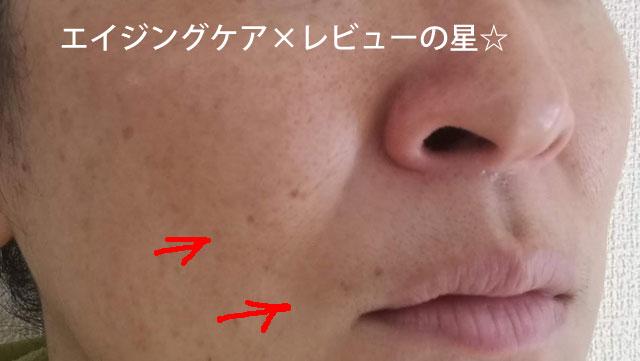 ▲[ドクターシーラボ] VC100ゲル【約1週間使用後】