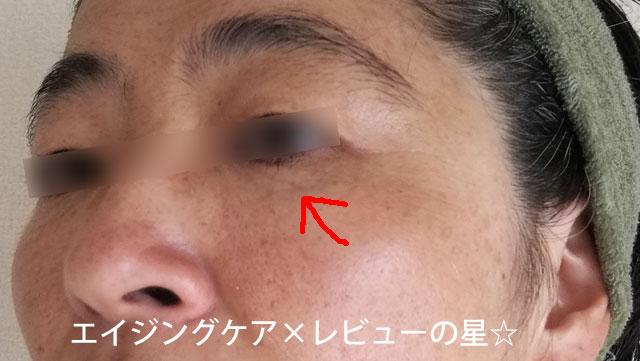 ▲ミューノアージュ化粧品【使用前】