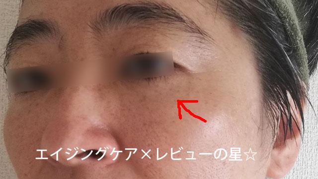 ▲ミューノアージュ化粧品【使用23日目】