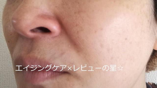 ラクトフェリンラボ【毛穴クレンジング後】