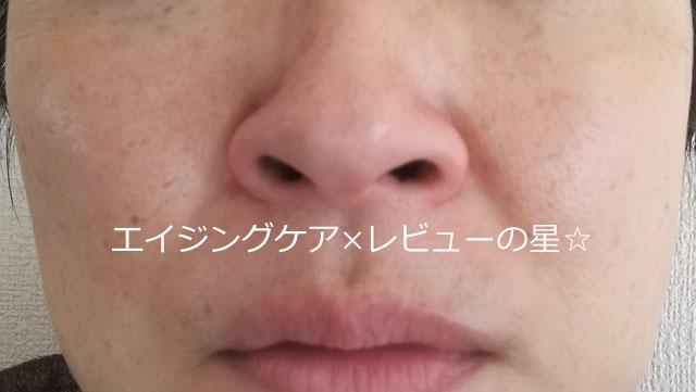▲[オルビス]クレンジングリキッドの毛穴汚れ落とし力