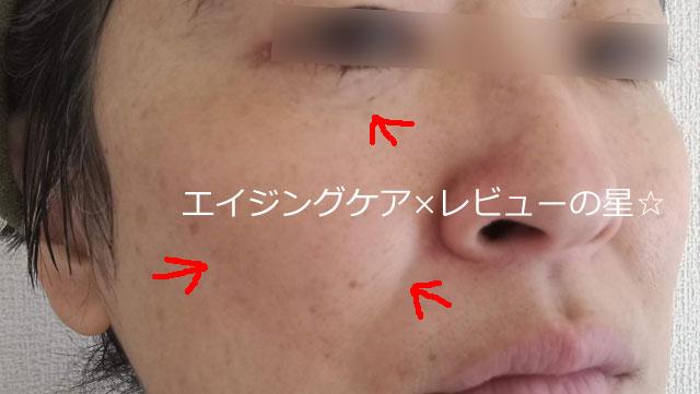 ▲[サラヤ]ラクトフェリンラボ【使用12日目】