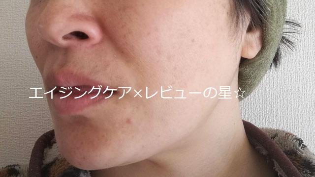 【使用6日目】[レステモ]美白ゲルクリーム