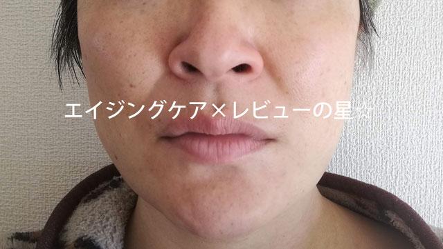 ▲ドモホルンリンクル【使用10日目】