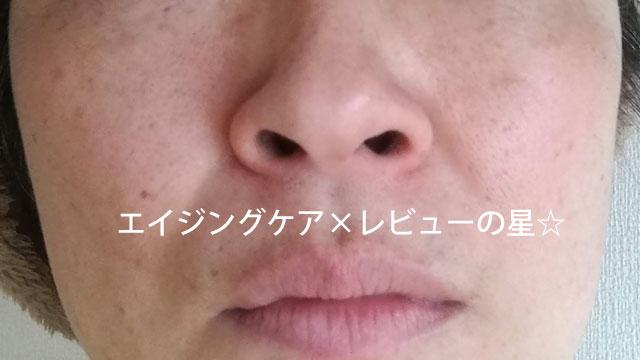 ▲【使用2ヶ月目】ちふれのエイジングケア(濃厚)