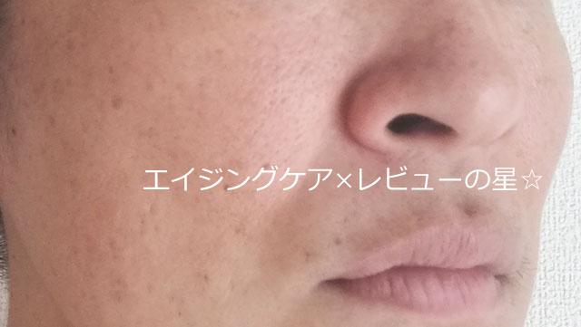 【使用前】米肌の美白「澄肌美白お試しセット」