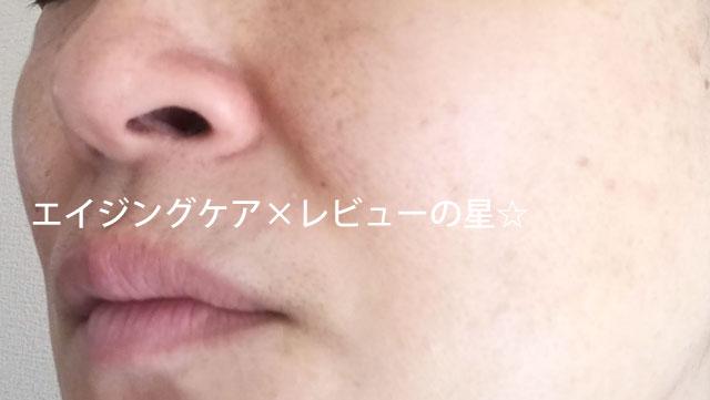 ▲【使用14日目】アクティバートfor デイリー SCブースターローション01