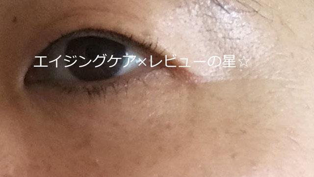 ▲【ノブL&W】使用13日目