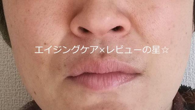 ▲【毛穴洗浄前】[スキンビル]ホットクレンジングジェル