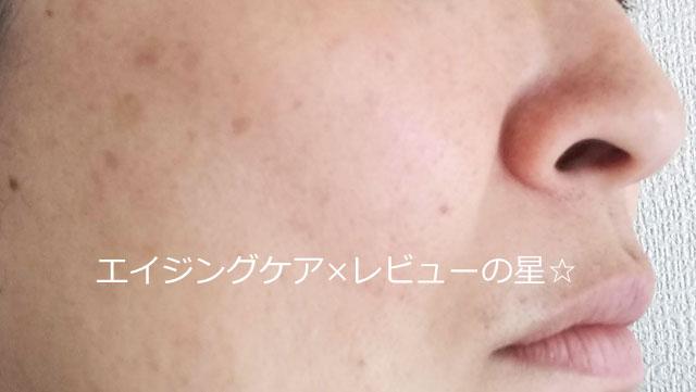 ▲神ファンデ[マキアレイベル]薬用クリアエステヴェール【使用前】