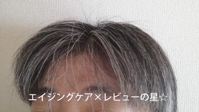▲HANAオーガニック【シャンプー+トリートメント1回頭皮ケア後】