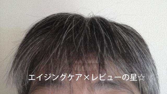 【使用前】[アビスタ]エイジングケアシャンプー+コンディショナー