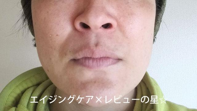 【使用前】[イドロジェーヌ]ホワイトエッセンス+ホワイトソープ