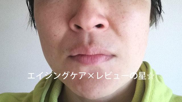 【使用12日目】[イドロジェーヌ]ホワイトエッセンス+ホワイトソープ